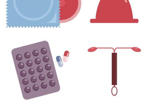 Steriletul sau dispozitiv intrauterin